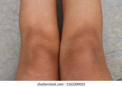 fat knees images stock photos  vectors  shutterstock