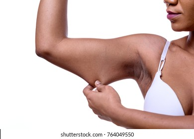 Black lady displaying the loose skin or flab on her upper arm pinching it between her fingers, close up view