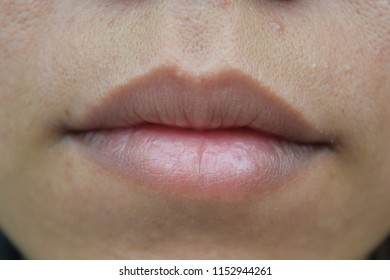 Black lips, dry mouth and crack/ Is a part of the body.