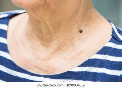 Black mole on senior woman's neck, Medicine, Close up