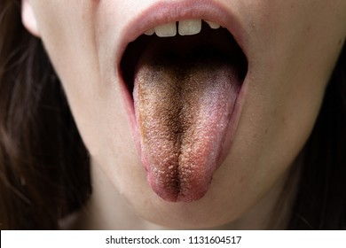 Black tongue, clinical case of lingua villosa