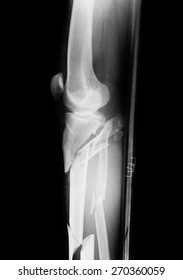 Black and white film X-ray of a broken leg bone.