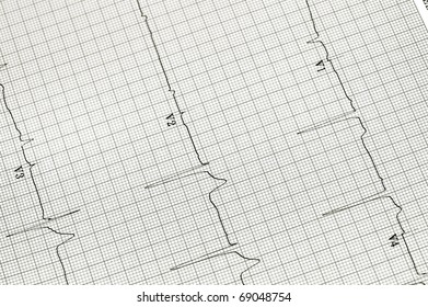 Black and white image of an EKG strip useful as background for a variety of medical images
