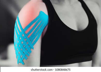Black and white image of kinesiology taping treatment with blue tape on female patient injured shoulder. Sports injury kinesio treatment.