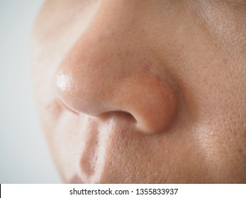 Blackhead and pimple on the nose in woman cause of oily skin and large pore using for skincare and cleansing or beauty product concept.