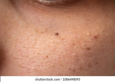 Blackheads and spots on the skin