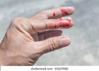 Bleeding Finger Images Stock Photos Vectors Shutterstock