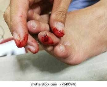 bleeding, nail tear, lesion, nail lesion, injury, bleeding finger, foot
