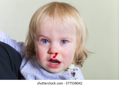 bleeding from the nose child