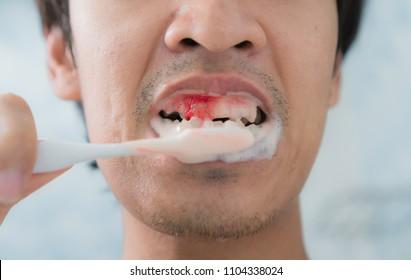 Bleeding at teeth during brushing with toothbrush.scurvy