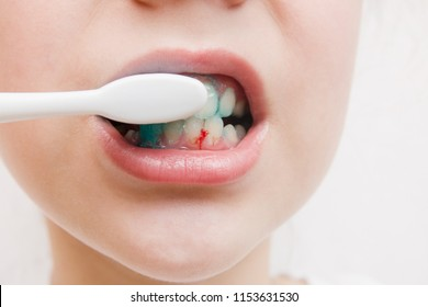 Bleeding at teeth during brushing with toothbrush.scurvy