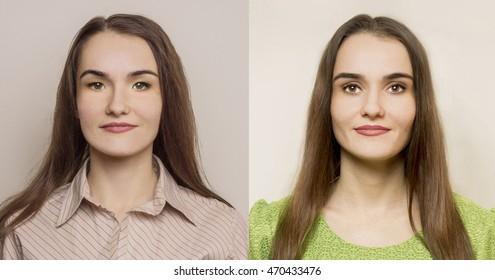 Eyelid Surgery Images, Stock Photos & Vectors   Shutterstock