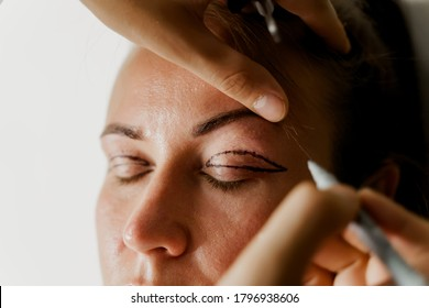 Blepharoplasty markup close-up on the face before the plastic surgery operation for modifying the eye region of the face in medical clinic. 2 doctors do plastic cosmetic operation