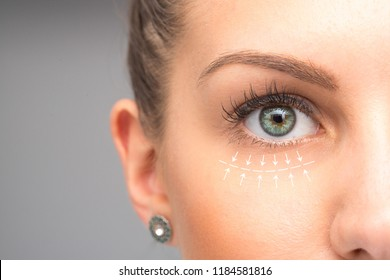 Blepharoplasty on female face