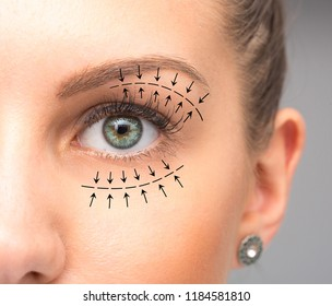 Blepharoplasty treatment on female eye