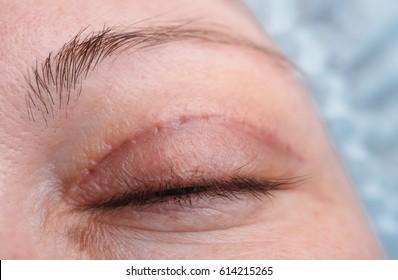 Blepharoplasty of the upper eyelid.