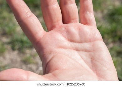 blister at the hand from gardening