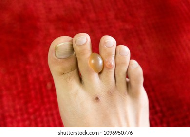 Blister on foot and is painful