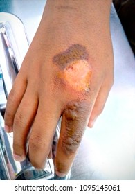 Blisters on the back of the hand caused by hot water