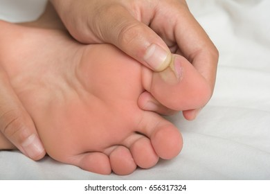 Blisters on the feet