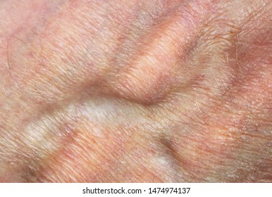 Bloated vein with blood and wrinkled  dry skin on an elderly man's hand  super macro background