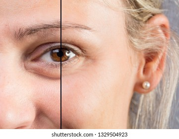 Blonde caucasian woman close up showing eye before and after aes
