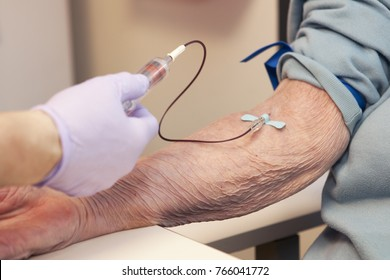 Blood being drawn, donated or for testing, of elderly woman. Shows one tube and Doctor or nurse with purple gloves. One hand, Phlebotomy.