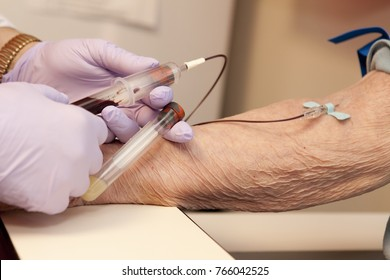 Blood being drawn, donated or for testing, of elderly woman. Shows one tube and Doctor or nurse with purple gloves. One hand, Phlebotomy
