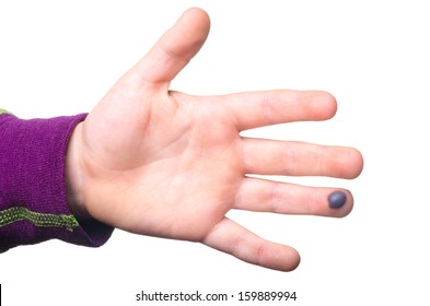 Blood blister on a child's finger isolated on white background