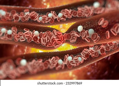 Blood Clot, Vein, Artery, Tunnel, Red Blood Cells, Internal Body, Blood Cell, Heart