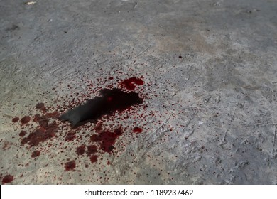 Blood dripping down into cement floor