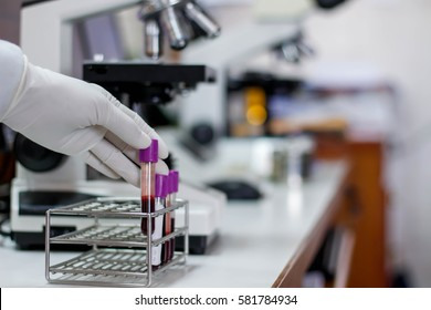 The blood in EDTA tube for test complete Blood Count (cbc) testing hematology laboratory.