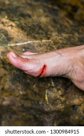Blood flow on the feet was bitten by animals, wound a foot flows blood is red cut on a tel skin wound,  Blood-sucking animal bitten on foot
