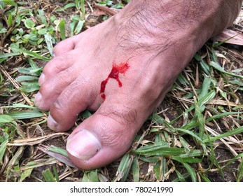 The blood flow out from foot after the slug bit and sucked when travel in to rain forest with the grass background.