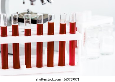 blood in glass tubes on background of microscope