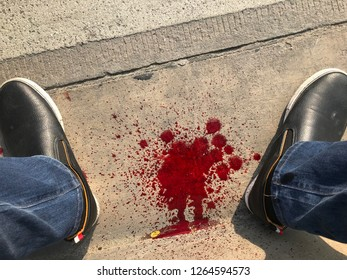 The blood on the floor after emergency on the road