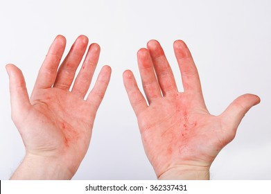blood on  hands isolated on white background