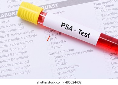 Blood for PSA test, tumor marker for prostate cancer