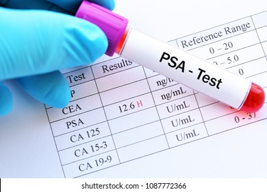 Blood sample with abnormal high PSA test result
