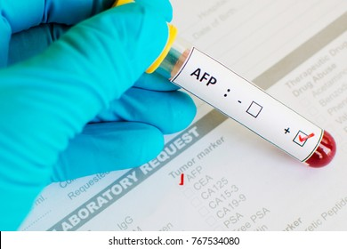 Blood sample with AFP positive, liver cancer diagnosis