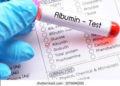 Blood sample for albumin test, diagnosis for liver function test