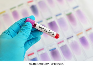 Blood sample for anemia testing
