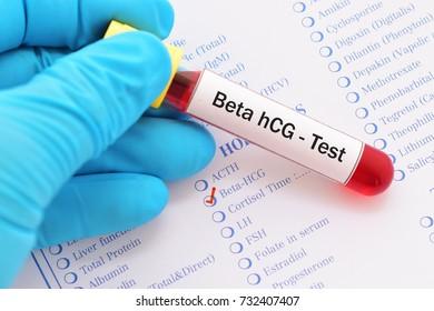 Blood sample for beta HCG (pregnancy hormone) testing