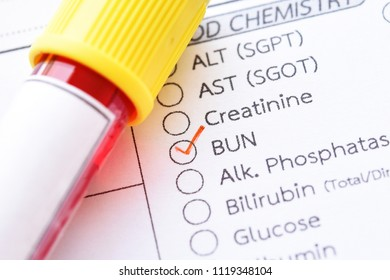 Creatinine Stock Photos, Images & Photography | Shutterstock