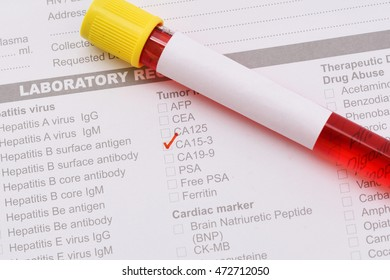 Blood sample for CA15-3 test, breast cancer diagnosis