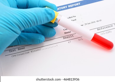 Blood sample with CPK (Creatine Kinase) enzyme testing result