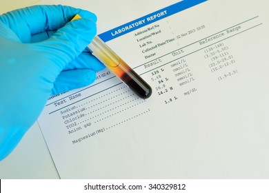 Blood sample with electrolyte testing result