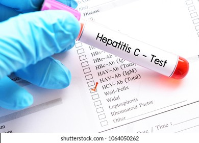 Blood sample for hepatitis C virus (HCV) test