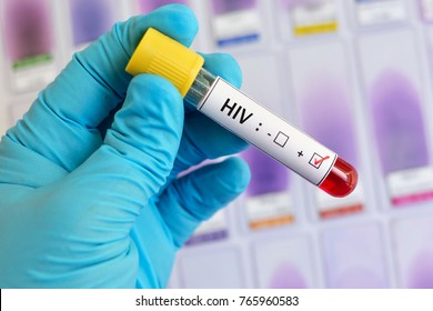Blood sample with HIV positive