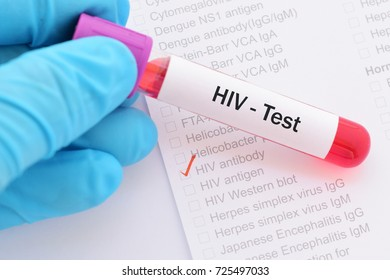 Blood sample for HIV test